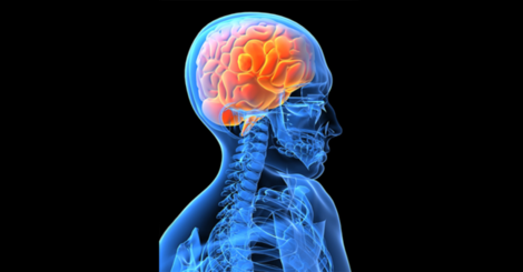Did you know%e2%80%a6 about primary generalized tonic clonic %28pgtc%29 seizures