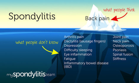 Mht infographic symptoms myspondylitisteam %281%29