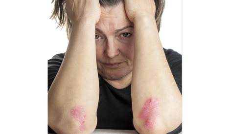 Can depression up odds for arthritis linked to psoriasis