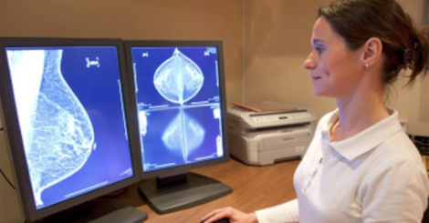 Tamoxifen at a lower dose might still prevent breast cancer's return
