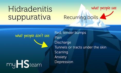 Mht infographic symptoms myhsteam