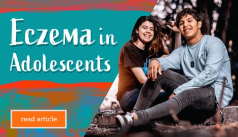 Myeczemateam carousel eczema in adolescents
