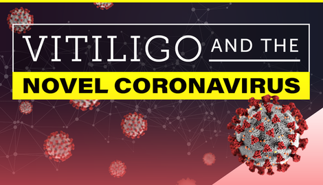 Mht myvitiligoteam resourcecenter carousel vitiligo and the novel coronavirus