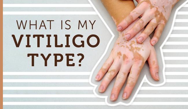 Mht myvitiligoteam carousel what is my vitiligo type