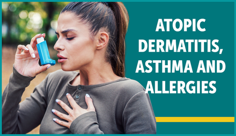 Myeczemateam carousel atopic dermatitis asthma allergies